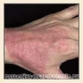 Атопічний дерматит: як лікувати, препарати, як виглядає, прояви атопічного дерматиту, причини виникнення