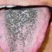 Чорний наліт на язиці