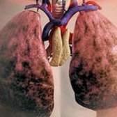 Хозл (хронічна обструктивна хвороба легень) емфізема