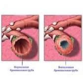 Які ознаки бронхіту і його лікування?