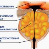 Консервативне (медикаментозне) лікування простатиту
