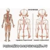 Лікувальна фізкультура - комплекси вправ для хребта при сколіозі