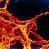 Лептоспіроз у людини