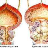 Основні симптоми аденоми простати