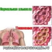 Пневмонія - симптоми і лікування пневмонії в стаціонарі