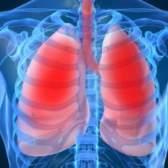 Причини і лікування запалення легенів, викликаного без температури