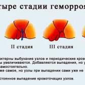 Причини появи геморою у чоловіків