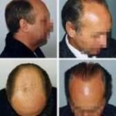 Трансплантація власного волосся у жінок і чоловіків