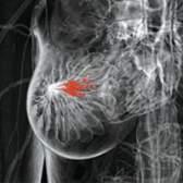 Види, причини і симптоми фіброми молочної залози