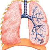 Запалення легенів