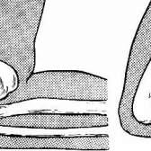 Вивих ліктьового суглоба руки