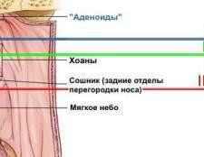Аденоїди (збільшення мигдаликів)
