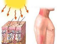 Алергія на сонце - лікування