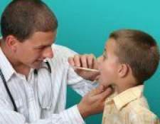 Ангіна гнійна - симптоми, лікування