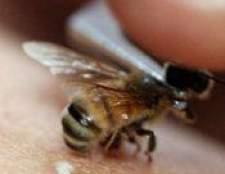 Апітерапія - лікування хвороб бджолами, медом, продуктами бджільництва, протипоказання