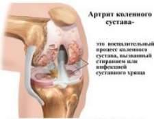 Артрит суглобів - лікування народними засобами