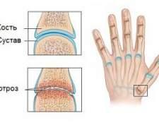 Артроз суглобів пальців рук і ніг