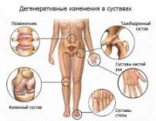 Біль у суглобах, причини, лікування