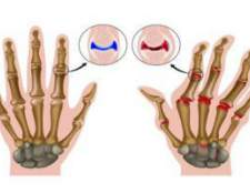Болять суглоби пальців рук - що робити?