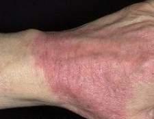 Що таке атопічний дерматит і як його лікувати? Симптоми, причини, лікування