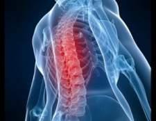 Що таке хондроз: симптоми і методи лікування