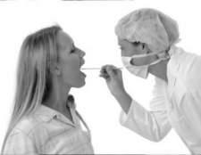 Діагностика і лікування нальоту на гландах