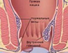 Геморой. Нові методи лікування геморою, профілактика