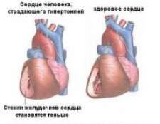 Гіпертонічна хвороба серця, лікування