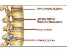 Грижа міжхребцевого диска поперекового відділу, симптоми, лікування