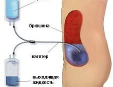 Хронічна ниркова недостатність