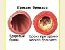 Хронічний бронхіт - лікування народними засобами, травами