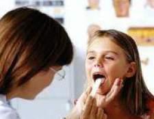 Інфекційний мононуклеоз у дітей: симптоми, лікування