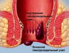 Ефективне лікування геморою
