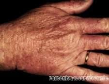 Екземи рук лікування народними засобами