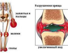 Ювенільний артрит