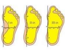 Як лікувати плоскостопість?