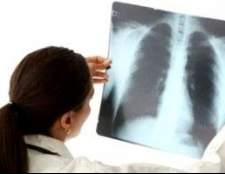 Як лікувати пневмонію: вдома чи в лікарні?