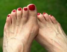 Як лікувати шишки на ногах