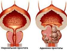 Як самостійно вилікувати аденому простати без операції