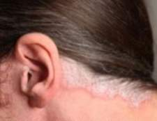 Як вилікувати хворобу псоріаз?