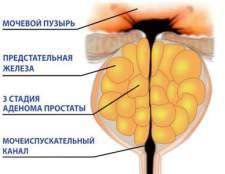 Які вправи при аденомі передміхурової залози найбільш ефективні?