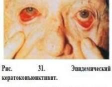 Кератокон`юнктивіт: лікування, симптоми, причини, лікування народними засобами