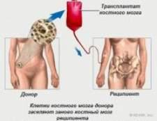 Кістковий мозок: трансплантація, життя після