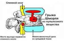 Лікування грижі шморля