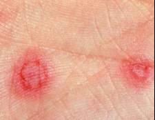 Лікування еритеми шкіри