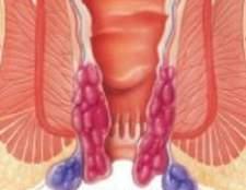 Лікування зовнішнього геморою при вагітності