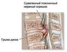 Міжхребцева грижа - симптоми і лікування, народні засоби