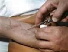 Пухлина після уколу в вену