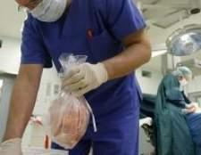 Органи людини: вилучення і трансплантація