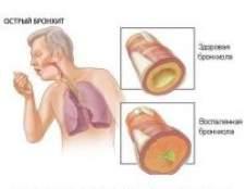 Гострий бронхіт - симптоми і лікування, народні засоби, народне лікування